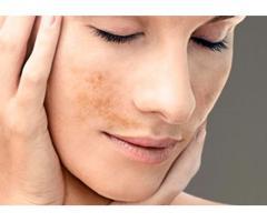 Consejos para quitar las manchas en la cara
